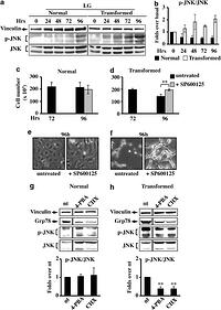 Glucose starvation induces cell death in K-ras-transformed