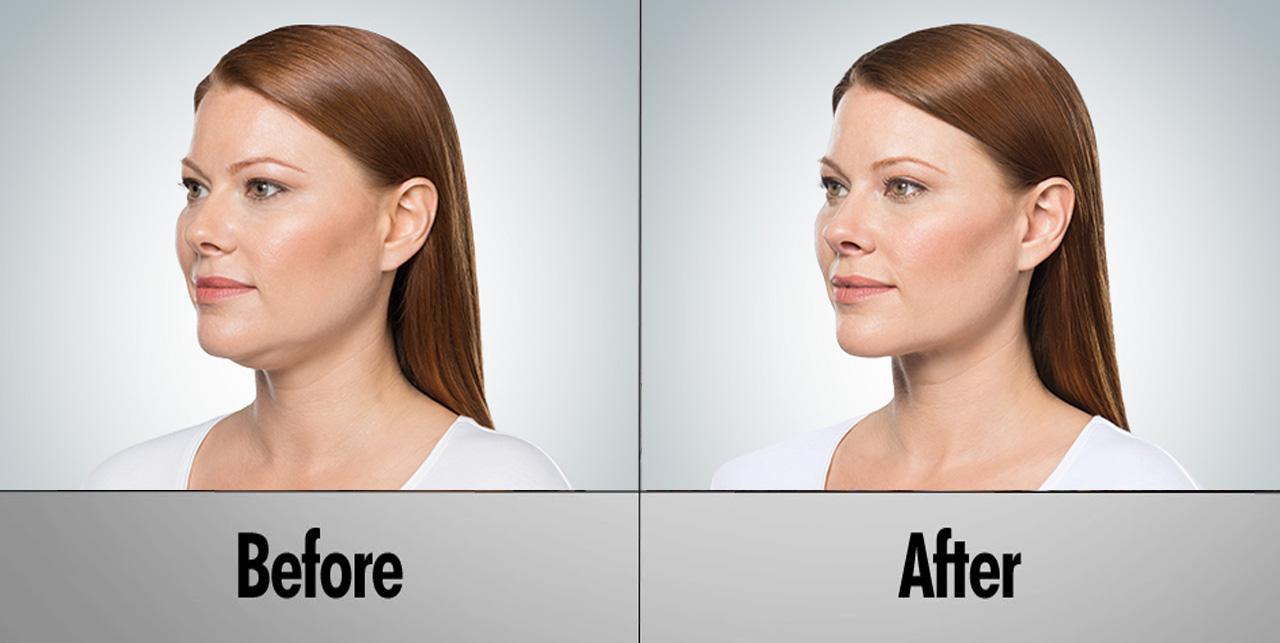 KYBELLA® Double Chin Treatment | Remove Submental Fat ...