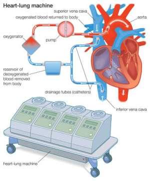 Stock Illustration  A heartlung machine diverts blood
