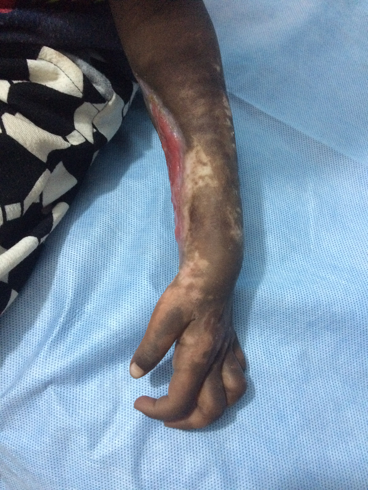 Fasciotomy to Save a Limb with Compartment Syndrome - The ...