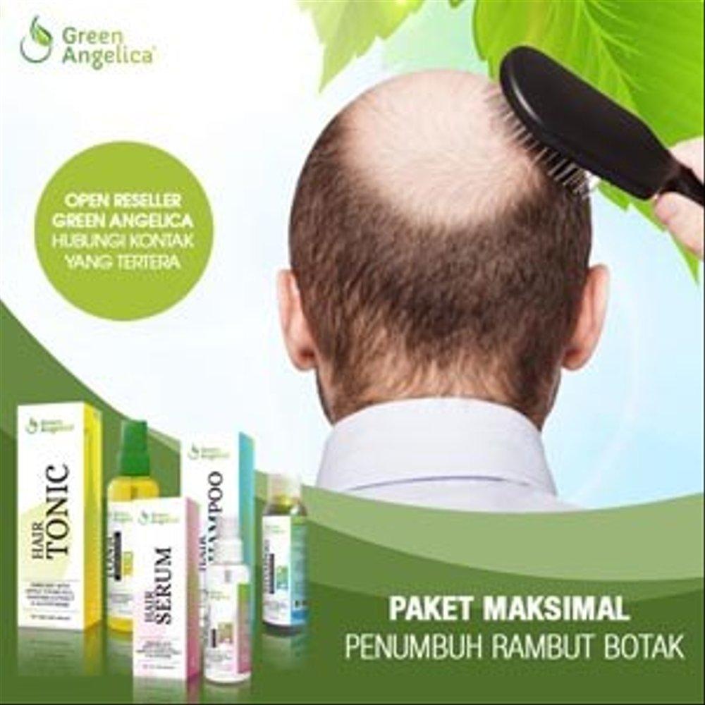 Obat Penumbuh Rambut Botak Karena Keturunan Green Angelica
