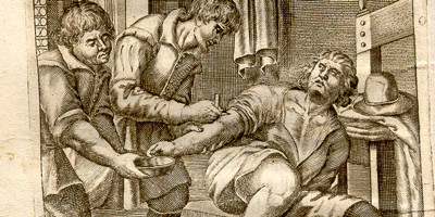 The 10 Most Insane Medical Practices in History | Cracked.com