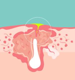 cyst on earlobe diagram [ 1080 x 1080 Pixel ]