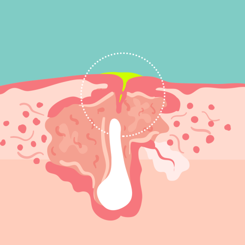 small resolution of cyst on earlobe diagram
