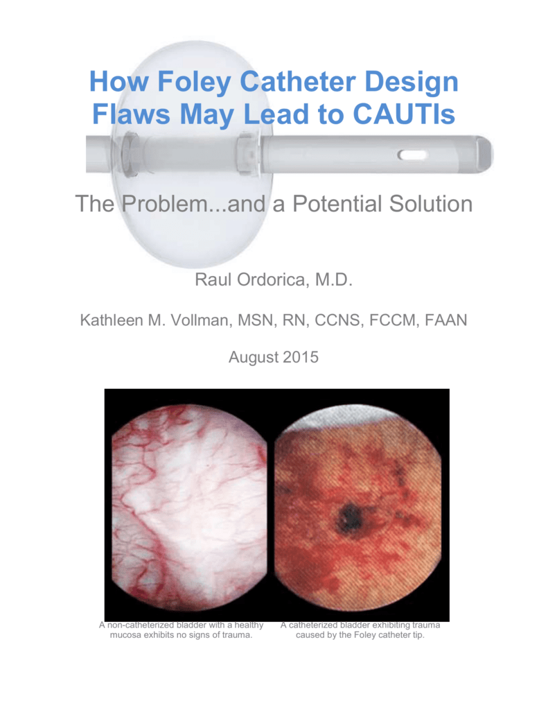 medium resolution of  a potential solution raul ordorica m d kathleen m vollman msn rn ccns fccm faan august 2015 a non catheterized bladder with a healthy mucosa