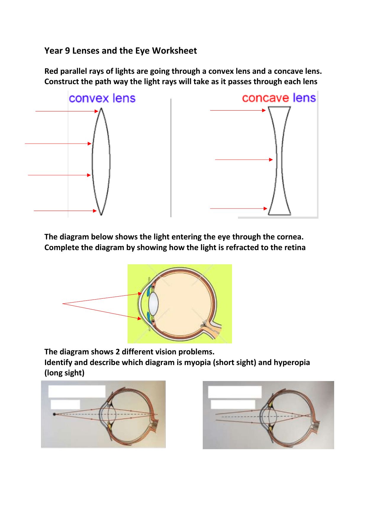 Lenses And The Eye Worksheet