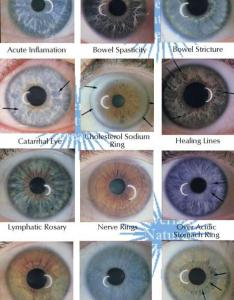 Examples of main iris markings rings iridology for health diagnosis also and beauty rh weddbook
