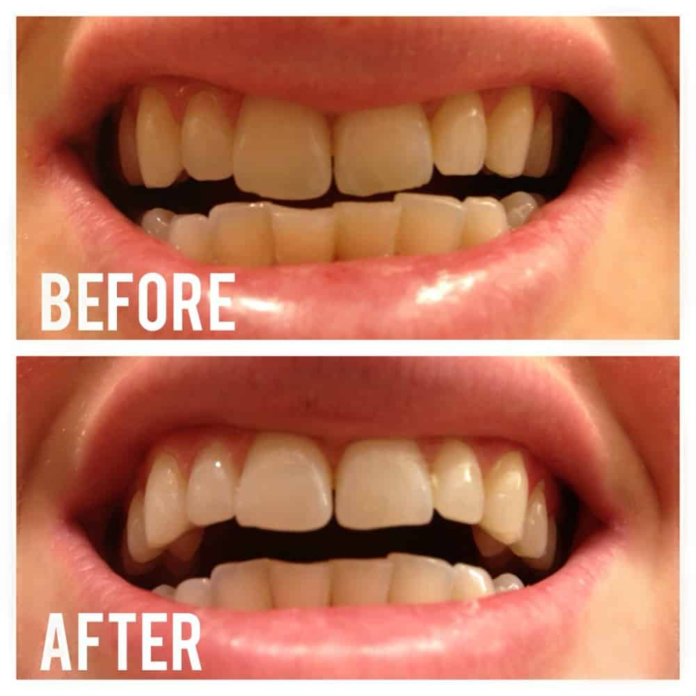 Whitening Your Teeth Naturally With Activated Charcoal ...