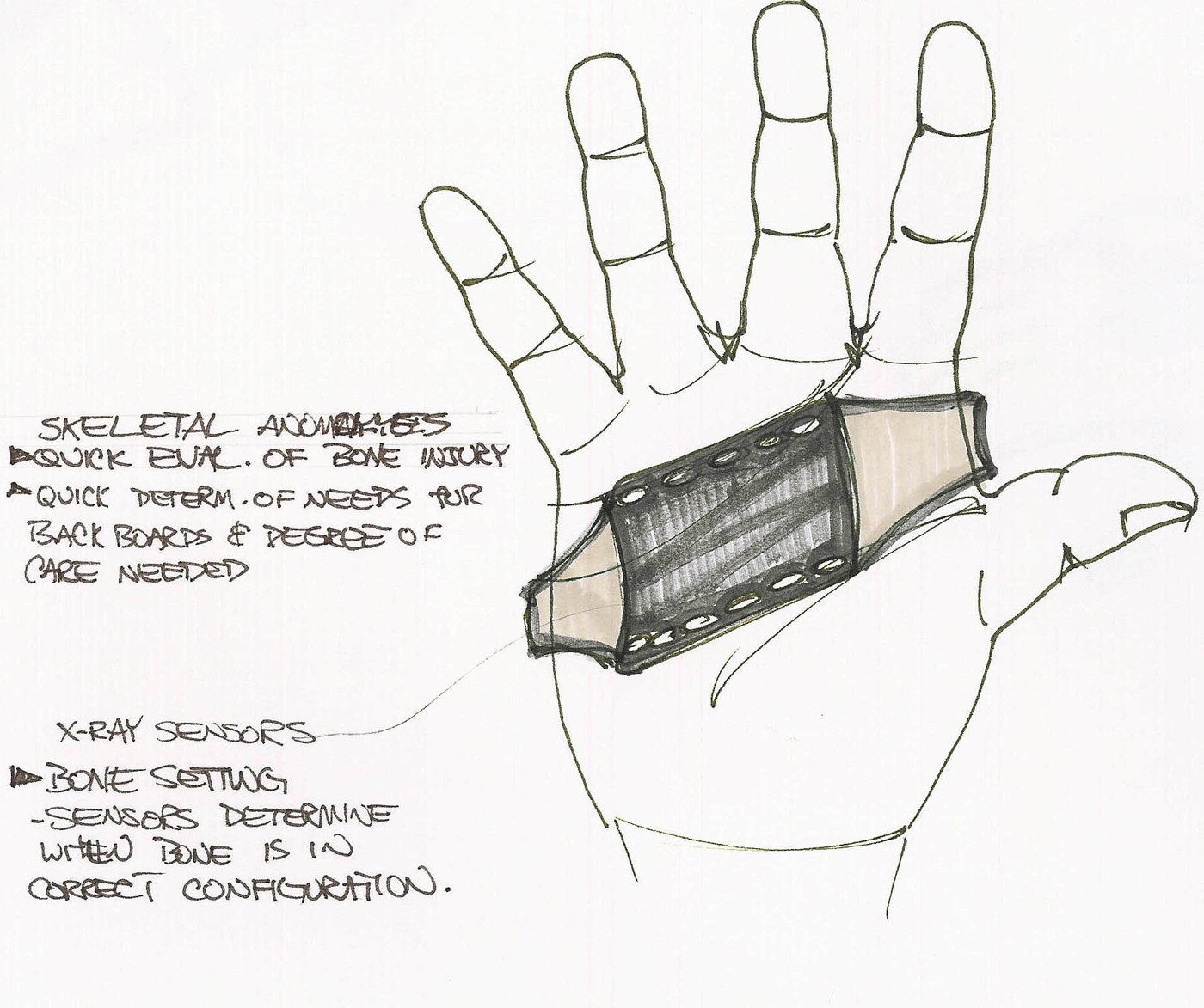 Medical Diagnostic Glove by Brian Perry at Coroflot.com