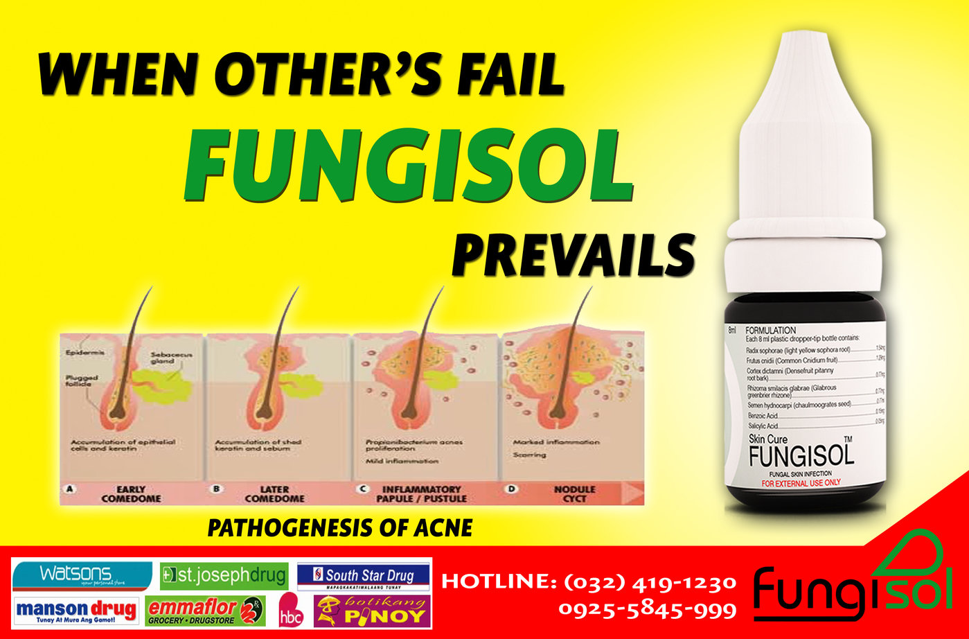 Fungisol Advertisement by Marilyn Sisa at Coroflotcom