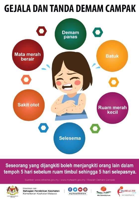 Cara Penularan Cacar Air : penularan, cacar, Bezakan, Demam, Campak, Cacar, Malaysia, Today, (FMT)
