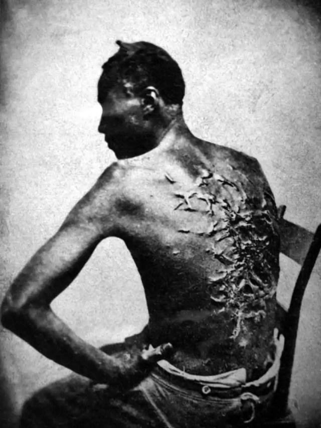Peter, un esclavo de Mississippi. Las cicatrices son resultado de los azotes de su capataz. Estuvo dos meses recuperándose de la paliza (1863).
