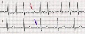 fibrillazione-atriale-586x235