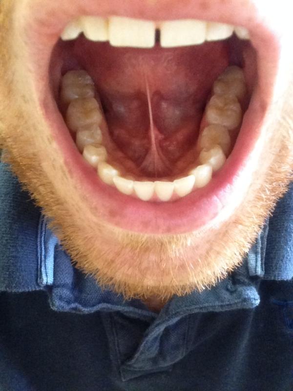 White Sores Underneath Tongue
