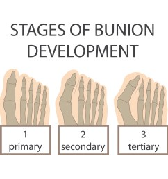 bunion stages [ 6000 x 6000 Pixel ]