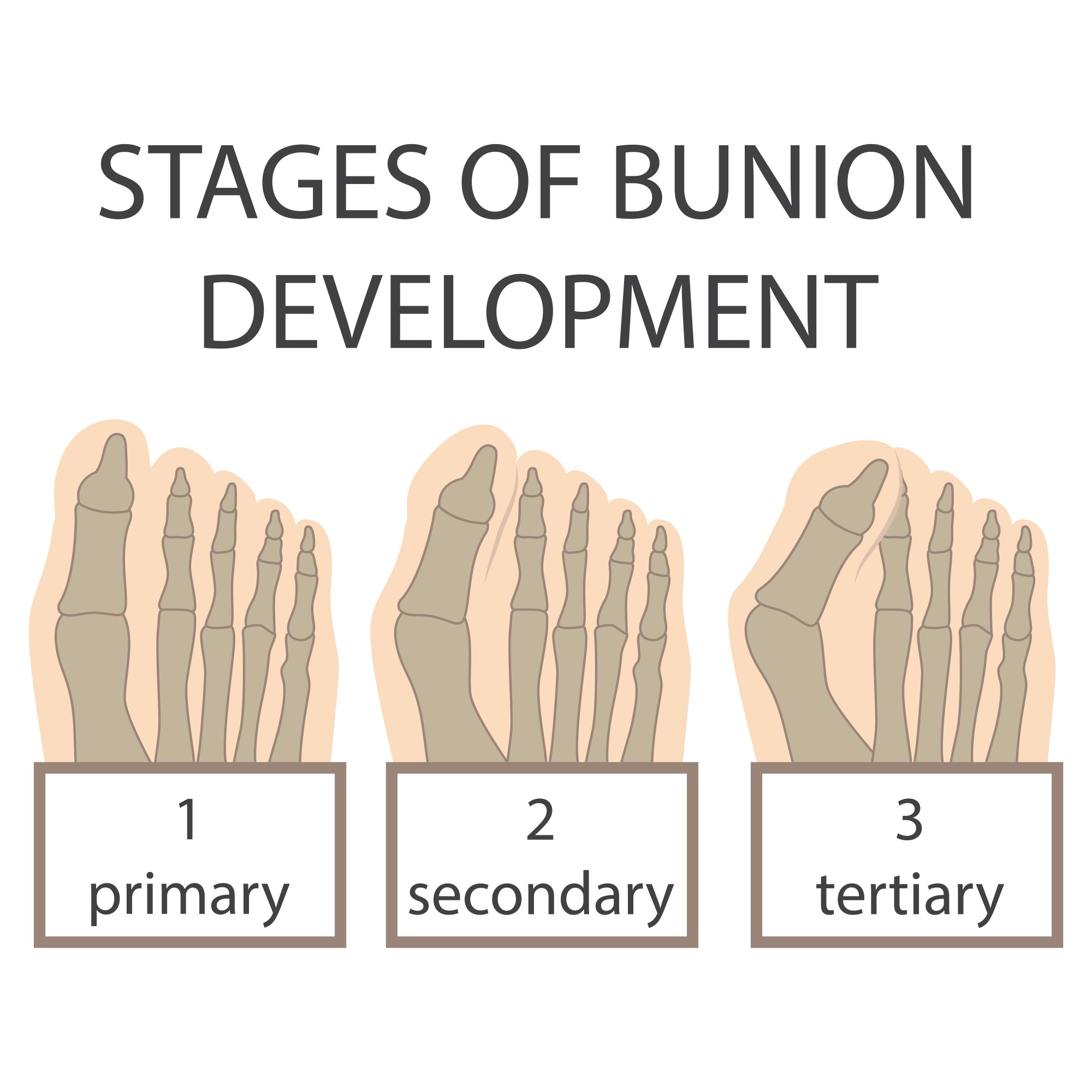 hight resolution of bunion stages