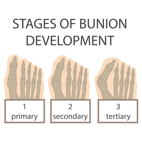 small resolution of bunion stages