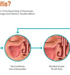 acute sinus infection acute sinusitis  [ 1872 x 908 Pixel ]