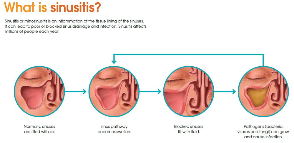 medium resolution of acute sinus infection acute sinusitis