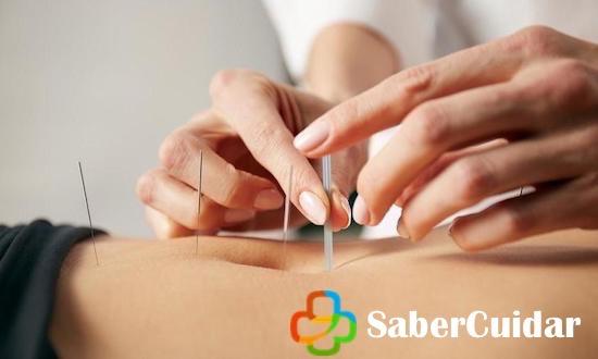 Cuidados en la acupuntura