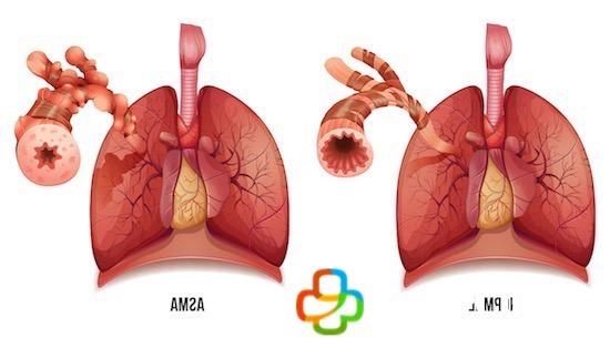 Pulmones con asma y pulmones normales