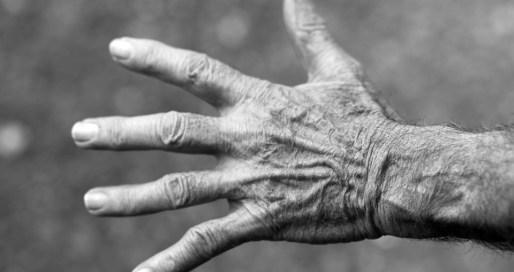 como cuidar unas manos secas