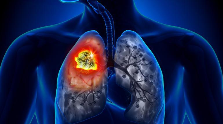 enfermedades respiratorias mas peligrosas