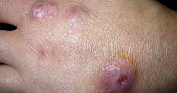 infección bacterias abscesos