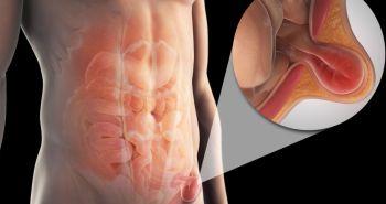 Cuidados postoperatorios de la hernia inguinal