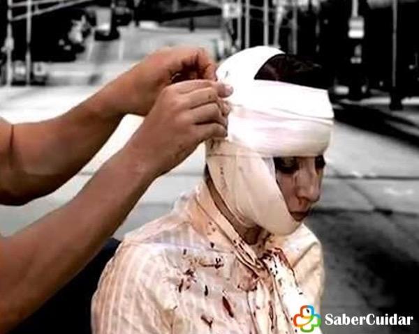 vendaje caberstrillo mandibula