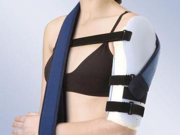tratamientos fractura de humero