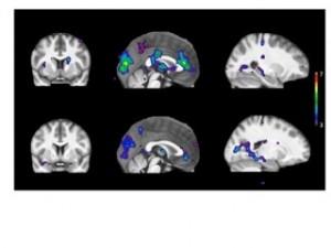 Arriba, en personas con metabolismo rápido de la nicotina, y abajo, lento. (Foto: McGill U.)