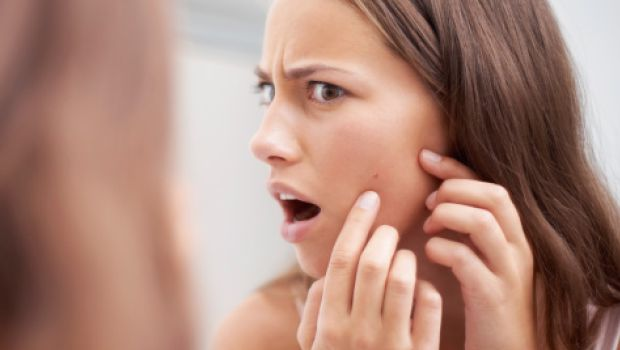 10 Worst Foods On List Of Top Foods That Cause Acne Breakouts