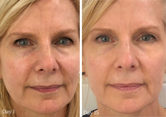 Anti-aging marine collagen cream before and after