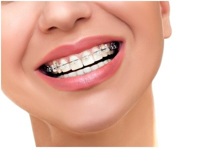 Why Balanced Diet Is Essential For Braces Treatment