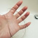 脂漏性脱毛症の原因とは?症状と自分で出来る対策を紹介します