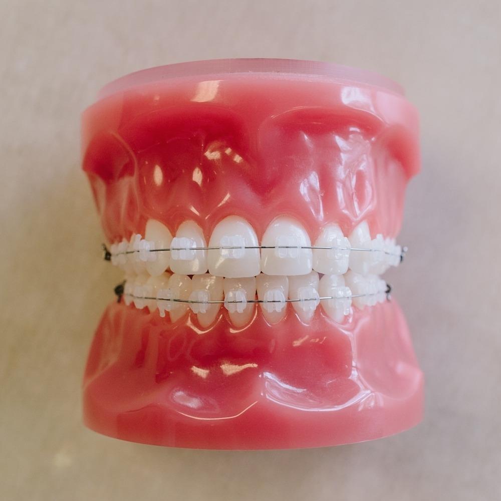 Types of Treatment  Saddle Creek Orthodontics