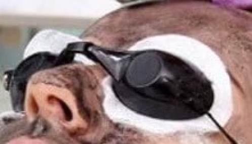 Dermapeel Safety Goggles