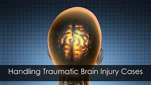 picture of inside of head discussion handling work related concussion and traumatic brain injury cases