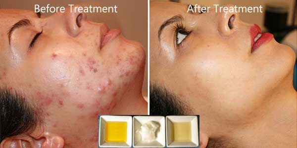 Acne Scars: Only Two Simple Treatments Required