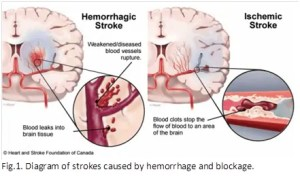 Traditional Chinese Medicine (TCM) on post stroke recovery | SafflowerClinicau