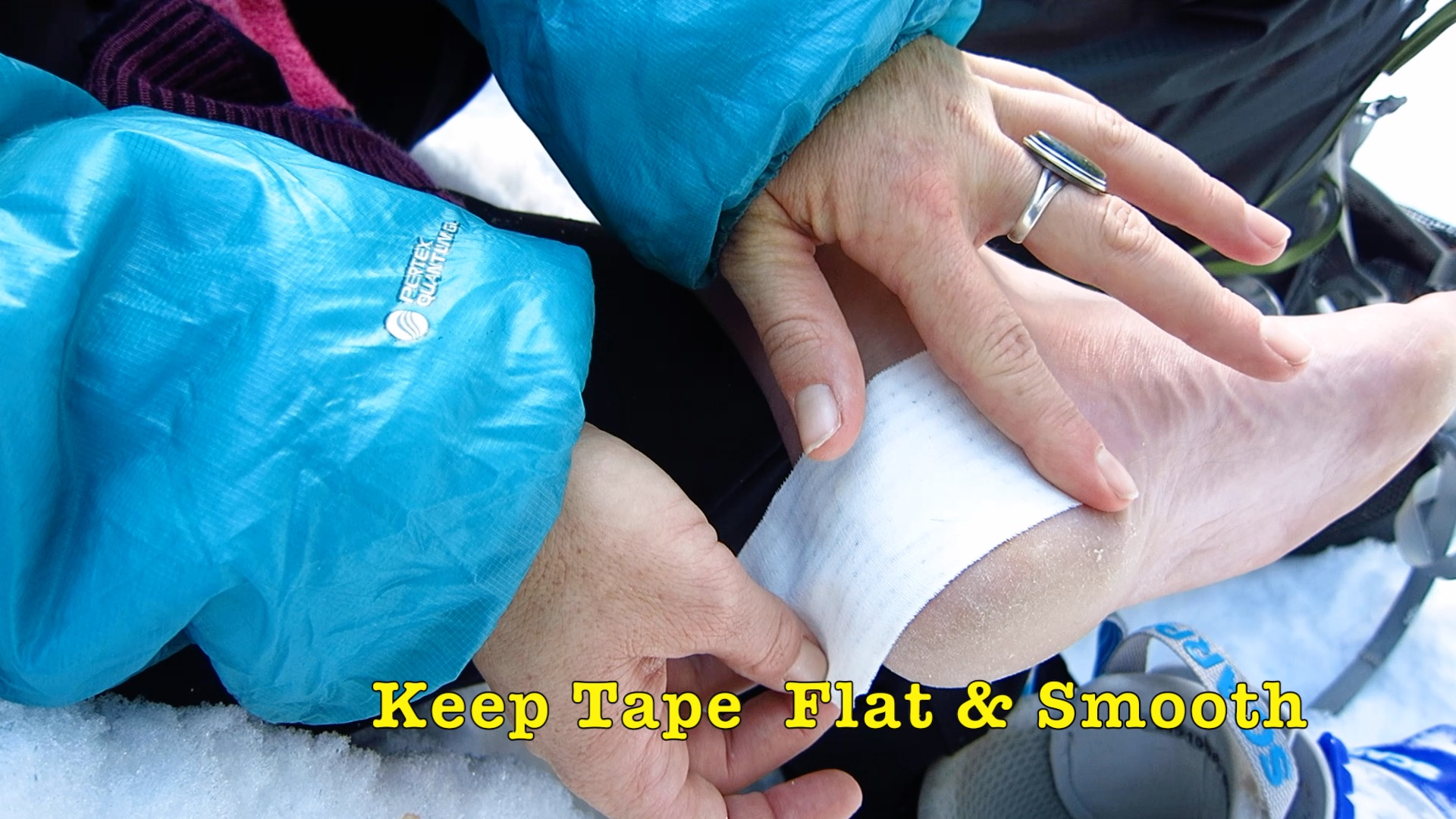 Sage shares 3 tips for taping blisters