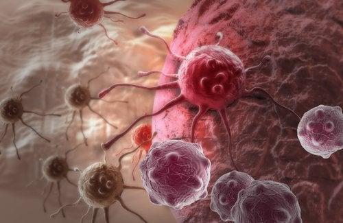 3-kanser