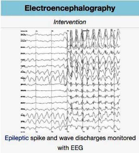 Pemeriksaan EEG