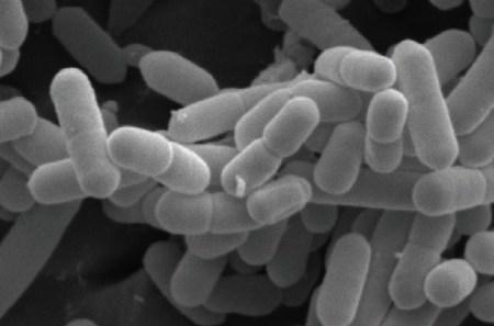 Morfologi L. monocytogenes pada pencitraan mikroskop elektron. Sumber: Copyright 2015 American Academy of Microbiology