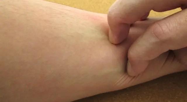 皮膚を無意識に掻き毟ってしまうのはストレスが原因!その対処法とは