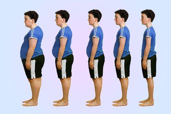 obesity-copy