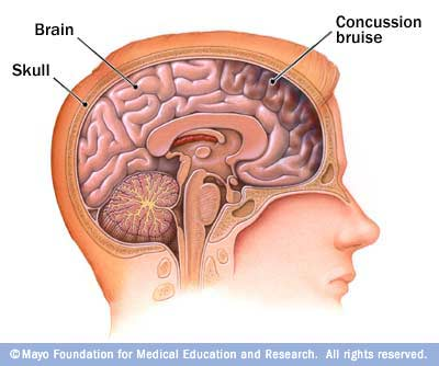 15 Points about the Effects of Concussions on