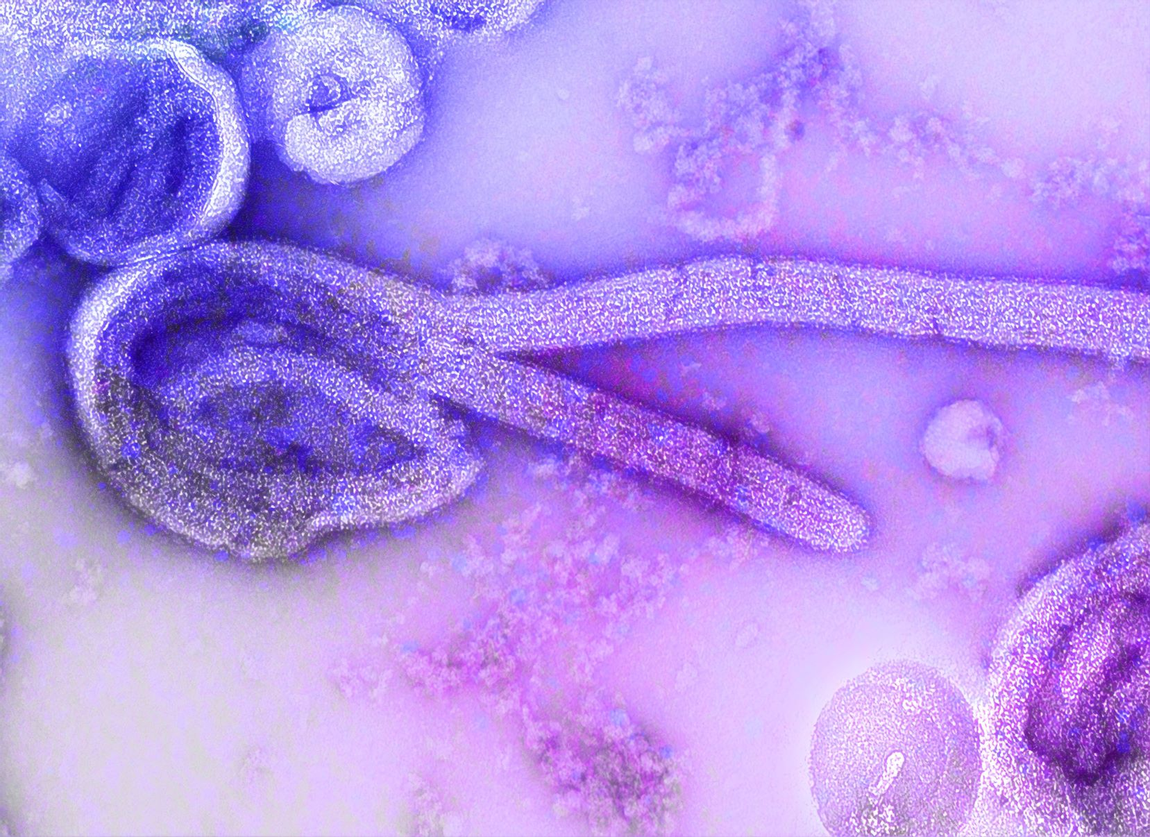 Photo by CDC on Unsplash ebola