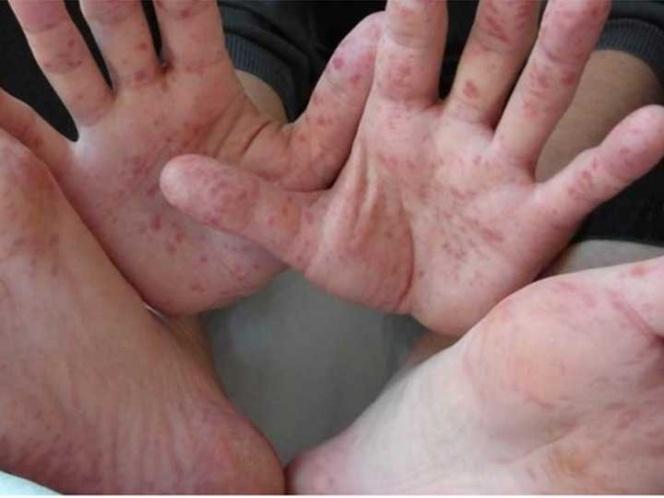 manos-pies
